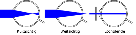 Funktionsweise Rasterbrille